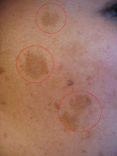 Hiperpigmentaci 243 N Deshazte De Las Manchas Solares